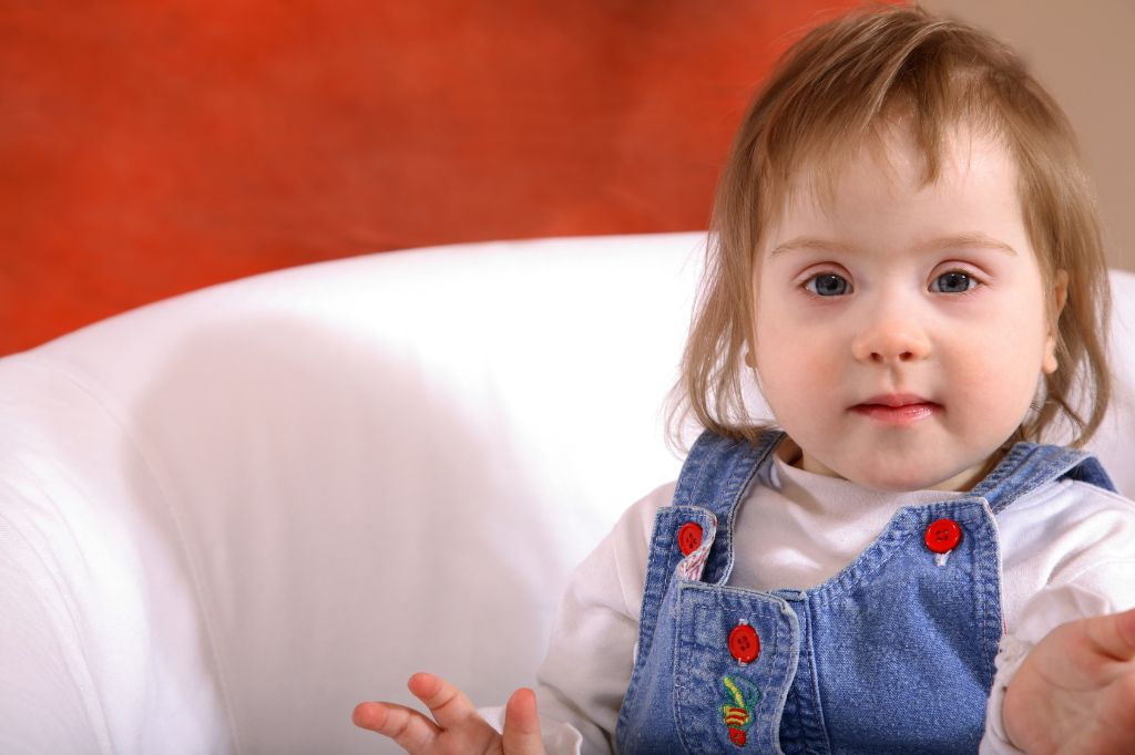 Handicapped children with Down Syndrome